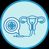 Embryo Freezing (Vitrification)