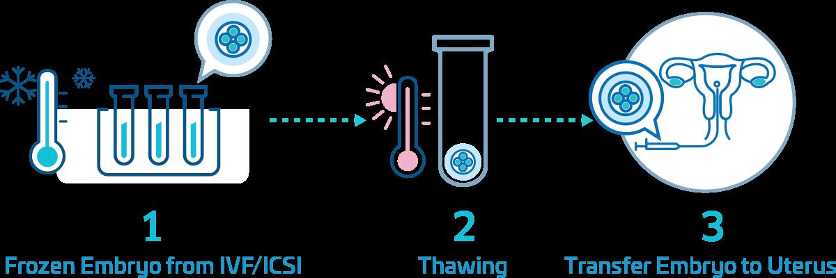 Frozen Embryo Transfer (FET)